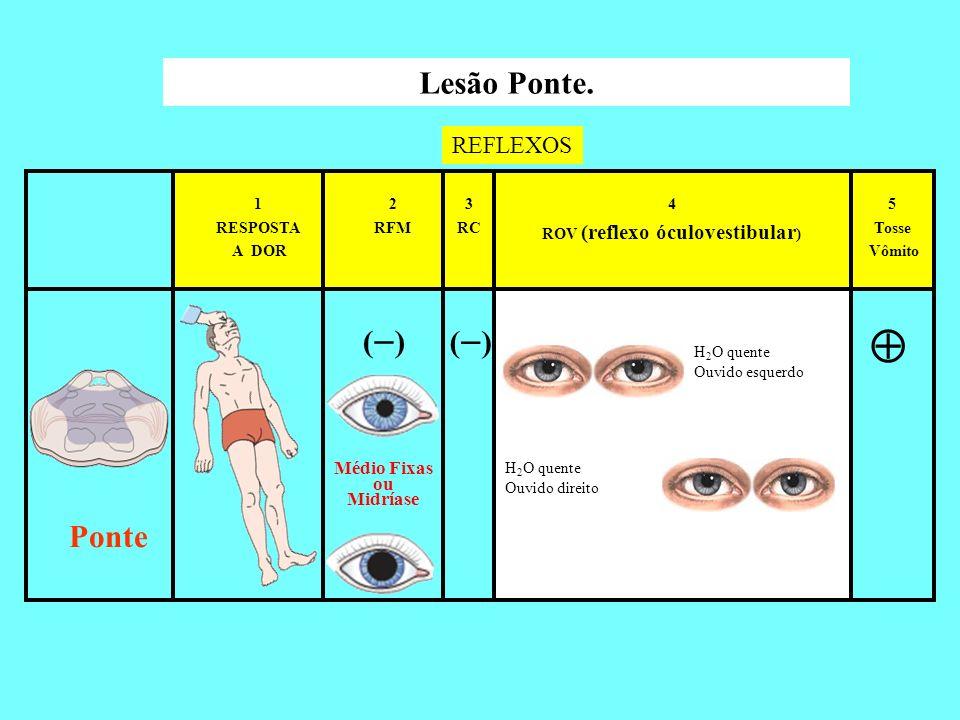 ( ) 5 Tosse Vômito 4 ROV (reflexo óculovestibular ) 3 RC 2 RFM 1 RESPOSTA A DOR Lesão Ponte. REFLEXOS Ponte H 2 O quente Ouvido esquerdo H 2 O quente