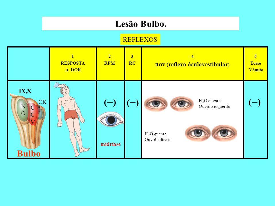 ( ) 5 Tosse Vômito 4 ROV (reflexo óculovestibular ) 3 RC 2 RFM 1 RESPOSTA A DOR Lesão Bulbo. REFLEXOS Bulbo H 2 O quente Ouvido esquerdo H 2 O quente