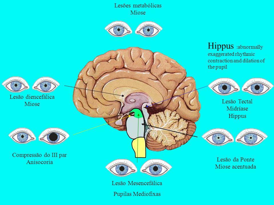 Lesão diencefálica Miose Lesões metabólicas Miose Compressão do III par Anisocoria Lesão da Ponte Miose acentuada Lesão Tectal Midríase Hippus Lesão M