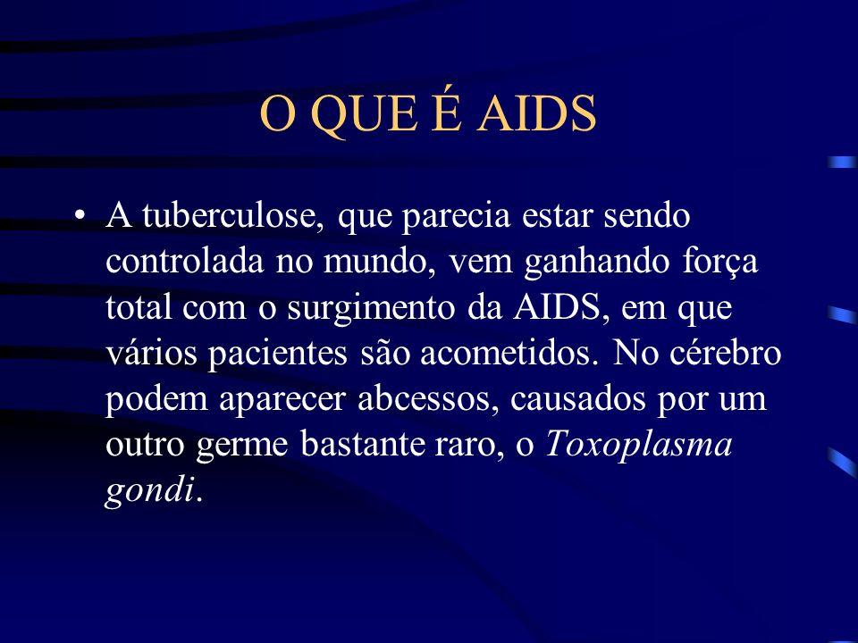 O QUE É AIDS Por exemplo, quando adquire pneumonia, em geral é por um organismo chamado Pneumocystis carinii, que só acomete pessoas bem debilitadas.