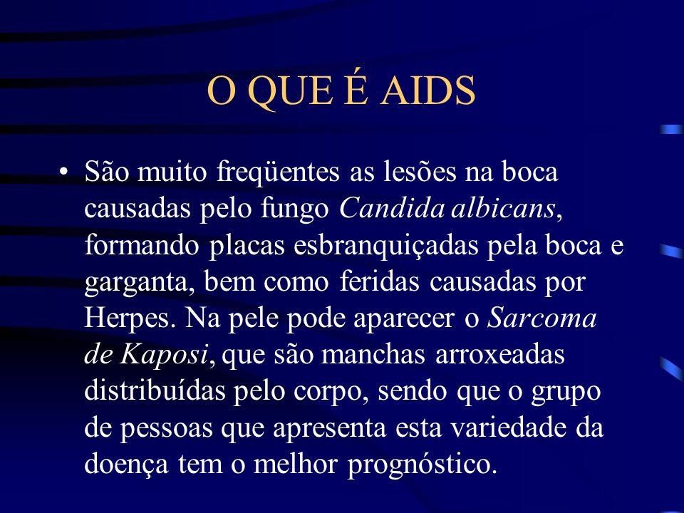 O QUE É AIDS A tuberculose, que parecia estar sendo controlada no mundo, vem ganhando força total com o surgimento da AIDS, em que vários pacientes são acometidos.