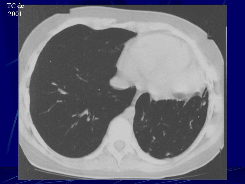 Laudo da TC de tórax (2001): Consolidação extensa com áreas de necrose cometendo o lobo superior do pulmão esquerdo.
