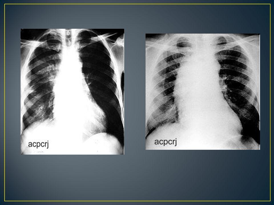 A tomografia computadorizada com injeção venosa do meio de contraste, apresenta condição tão boa ou, às vezes, melhor que a angiografia para o diagnóstico definitivo.