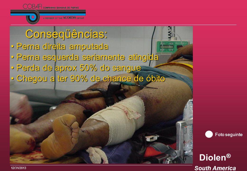Diolen ® South America 12/31/2013 Conseqüências: Perna direita amputada Perna direita amputada Perna esquerda seriamente atingida Perna esquerda seria