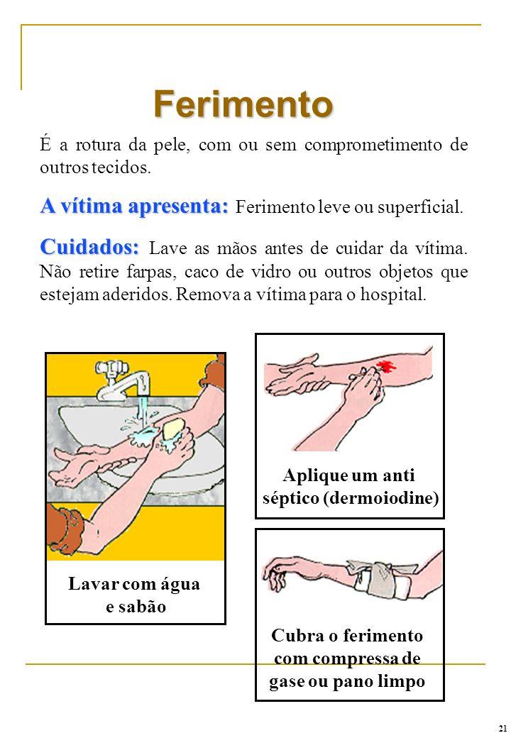 É a rotura da pele, com ou sem comprometimento de outros tecidos. A vítima apresenta: A vítima apresenta: Ferimento leve ou superficial. Cuidados: Cui