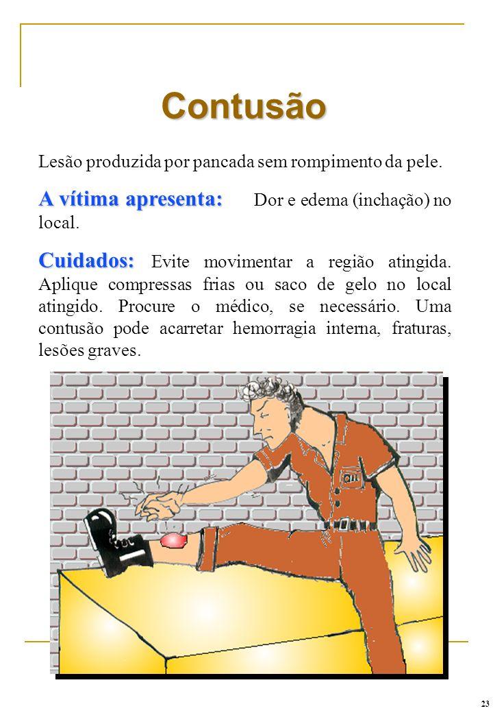 Lesão produzida por pancada sem rompimento da pele. A vítima apresenta: A vítima apresenta: Dor e edema (inchação) no local. Cuidados: Cuidados: Evite