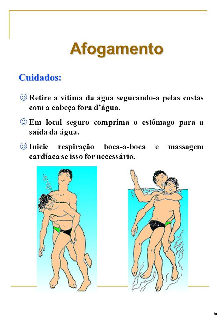 Cuidados: Afogamento J Retire a vítima da água segurando-a pelas costas com a cabeça fora dágua. J Em local seguro comprima o estômago para a saída da