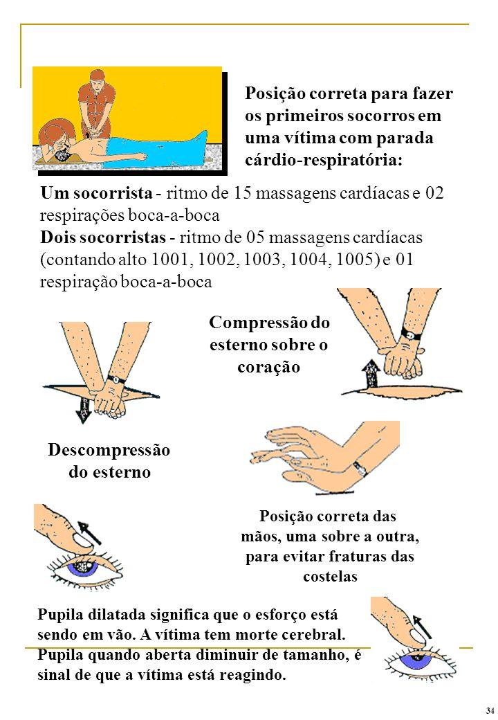 Posição correta das mãos, uma sobre a outra, para evitar fraturas das costelas Compressão do esterno sobre o coração Descompressão do esterno Posição