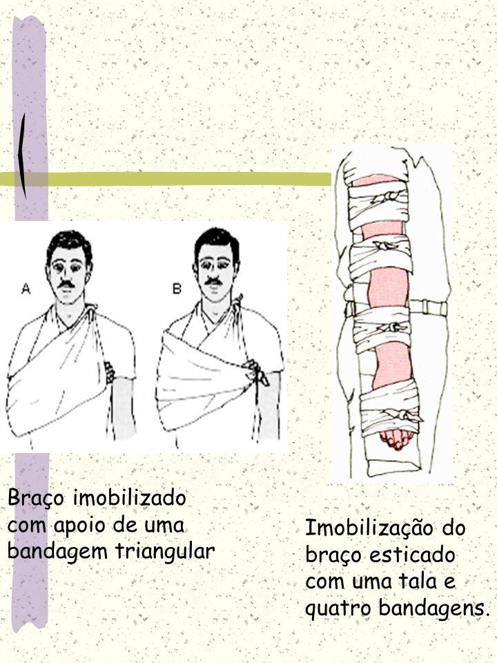 Braço imobilizado com apoio de uma bandagem triangular Imobilização do braço esticado com uma tala e quatro bandagens.
