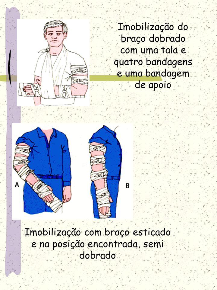 Imobilização do braço dobrado com uma tala e quatro bandagens e uma bandagem de apoio Imobilização com braço esticado e na posição encontrada, semi do