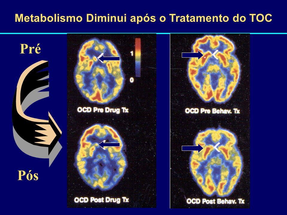 Metabolismo Diminui após o Tratamento do TOC Pré Pós