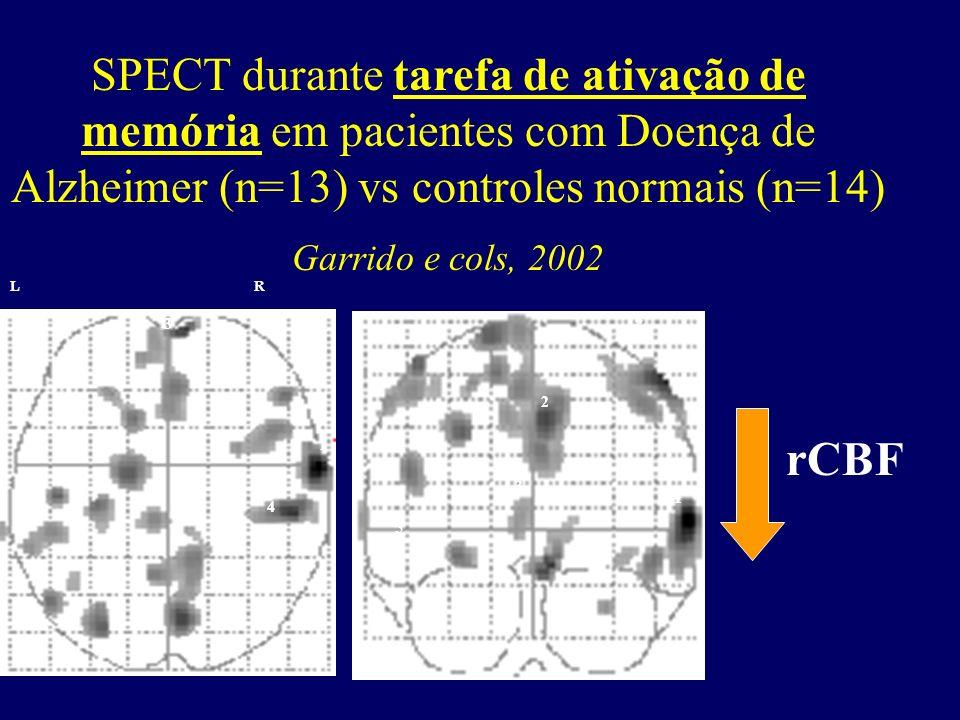 SPECT durante tarefa de ativação de memória em pacientes com Doença de Alzheimer (n=13) vs controles normais (n=14) Garrido e cols, 2002 LR 1 2 3 45 1