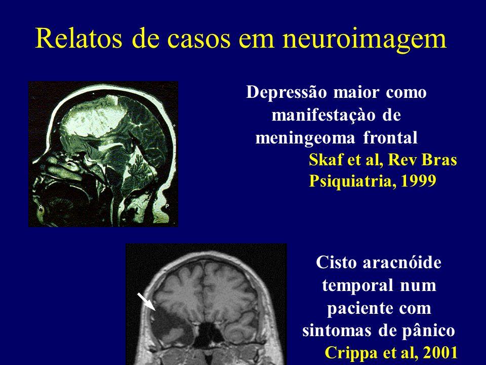 Skaf et al, Rev Bras Psiquiatria, 1999 Depressão maior como manifestaçào de meningeoma frontal Crippa et al, 2001 Cisto aracnóide temporal num pacient
