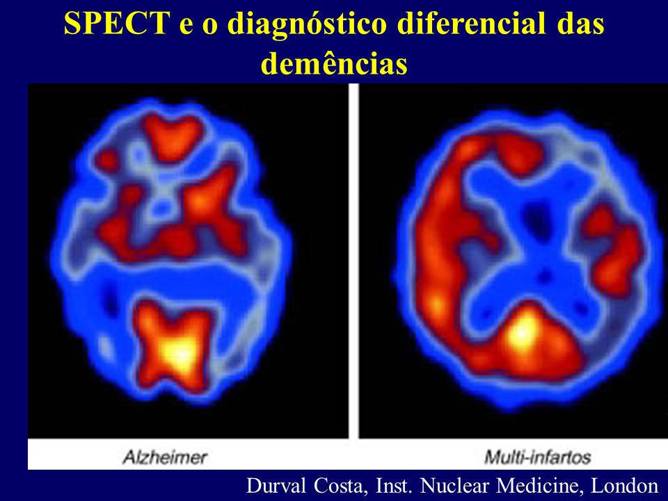 SPECT e o diagnóstico diferencial das demências Durval Costa, Inst. Nuclear Medicine, London