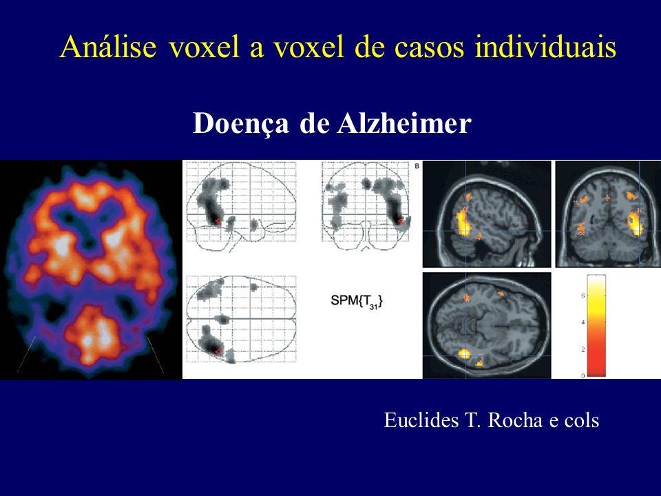 Análise voxel a voxel de casos individuais Doença de Alzheimer Euclides T. Rocha e cols