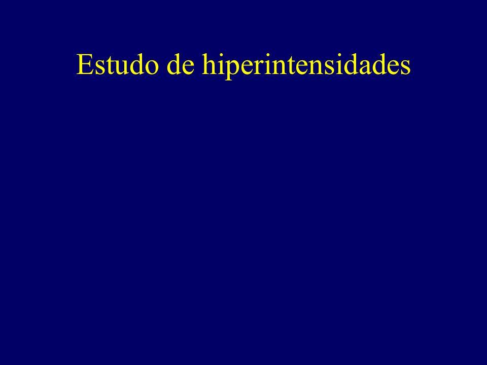 Lacerda, Camargo et al – Revista Brasileira de Psiquiatria, 2001 Hiperatividade cerebral em um paciente com transtorno obsessivo-compulsivo