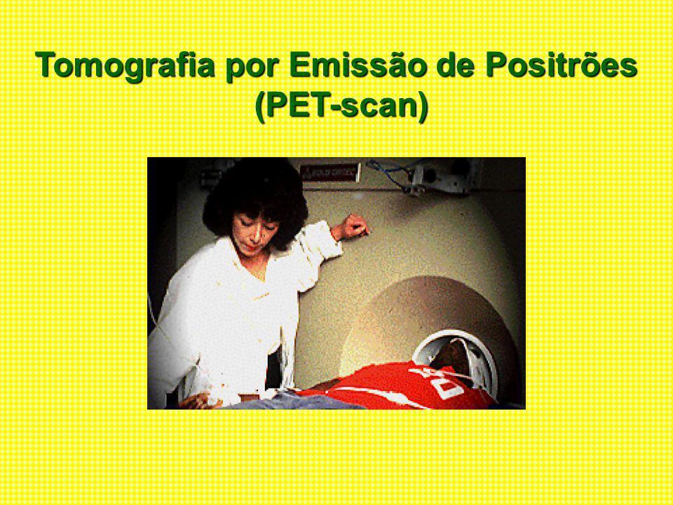 Tomografia por Emissão de Positrões (PET-scan) (PET-scan)