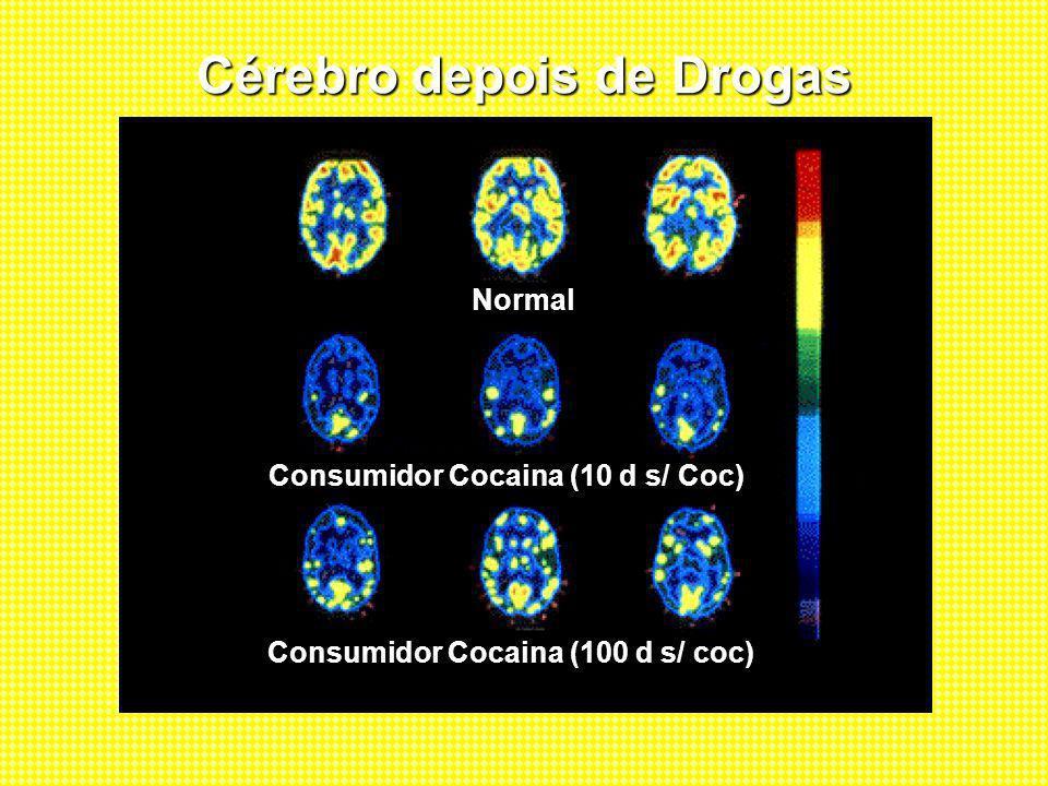 Cérebro depois de Drogas Normal Consumidor Cocaina (10 d s/ Coc) Consumidor Cocaina (100 d s/ coc)