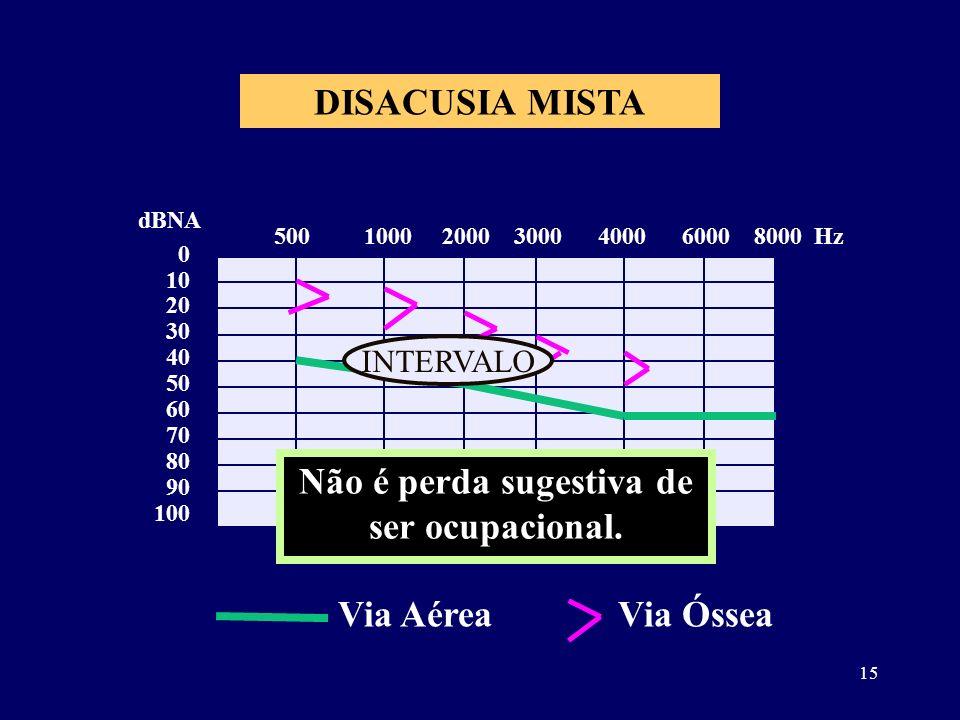 15 DISACUSIA MISTA 0 10 20 30 40 50 60 70 80 90 100 dBNA 500 1000 2000 3000 4000 6000 8000 Hz Não é perda sugestiva de ser ocupacional. Via AéreaVia Ó