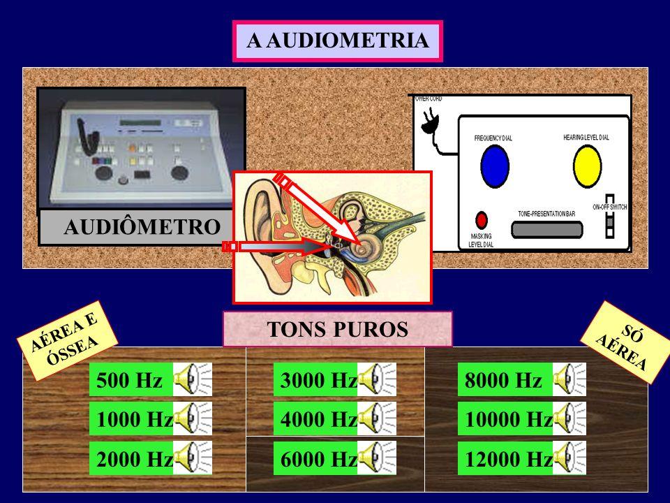 4 O AUDIOGRAMA 0 10 20 30 40 50 60 70 80 90 100 dBNA 500 1000 2000 3000 4000 6000 8000 Hz Os limiares auditivos são colocados no gráfico FREQUÊNCIAS INTENSIDADES