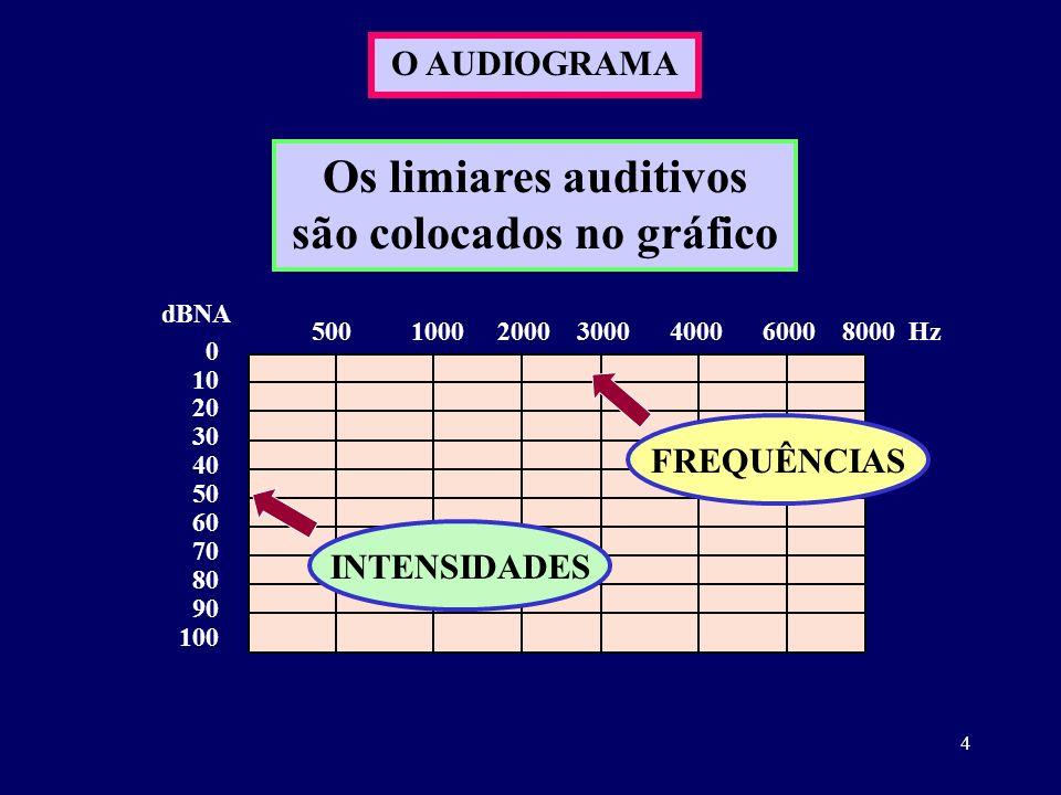 4 O AUDIOGRAMA 0 10 20 30 40 50 60 70 80 90 100 dBNA 500 1000 2000 3000 4000 6000 8000 Hz Os limiares auditivos são colocados no gráfico FREQUÊNCIAS I