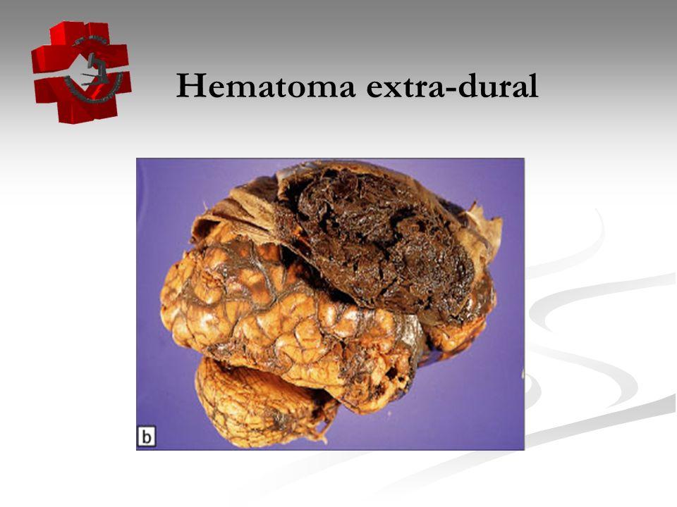 Hematoma extra-dural Hematoma extra-dural