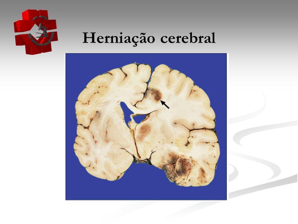 Herniação cerebral