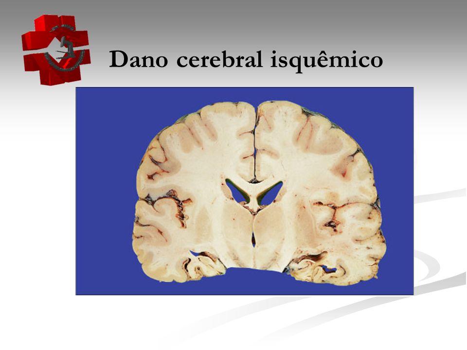 Dano cerebral isquêmico Dano cerebral isquêmico
