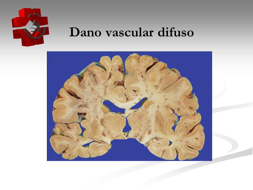 Dano vascular difuso Dano vascular difuso