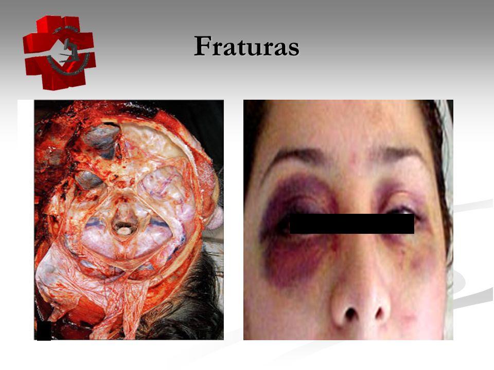 Hemorragia intra-craniana Hemorragia intra-craniana Hematoma intracerebral Hematoma intracerebral - associado à contusão - + comum: lobos frontais e temporais - hematomas profundos em gânglios da base: + comum do dano difuso que no focal