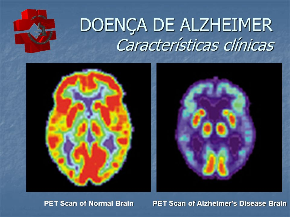 DOENÇA DE ALZHEIMER Características clínicas PET Scan of Normal Brain PET Scan of Alzheimer's Disease Brain
