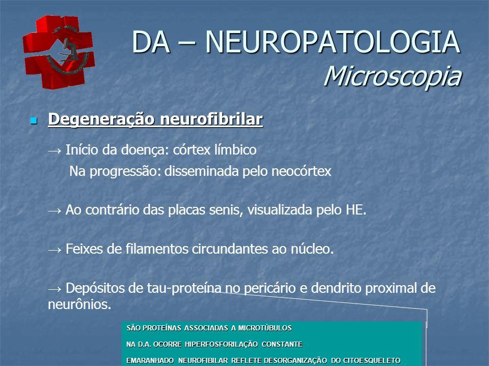 DA – NEUROPATOLOGIA Microscopia Degeneração neurofibrilar Degeneração neurofibrilar Início da doença: córtex límbico Na progressão: disseminada pelo neocórtex Ao contrário das placas senis, visualizada pelo HE.