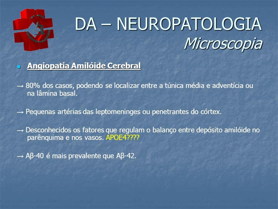 DA – NEUROPATOLOGIA Microscopia Angiopatia Amilóide Cerebral Angiopatia Amilóide Cerebral 80% dos casos, podendo se localizar entre a túnica média e adventícia ou na lâmina basal.