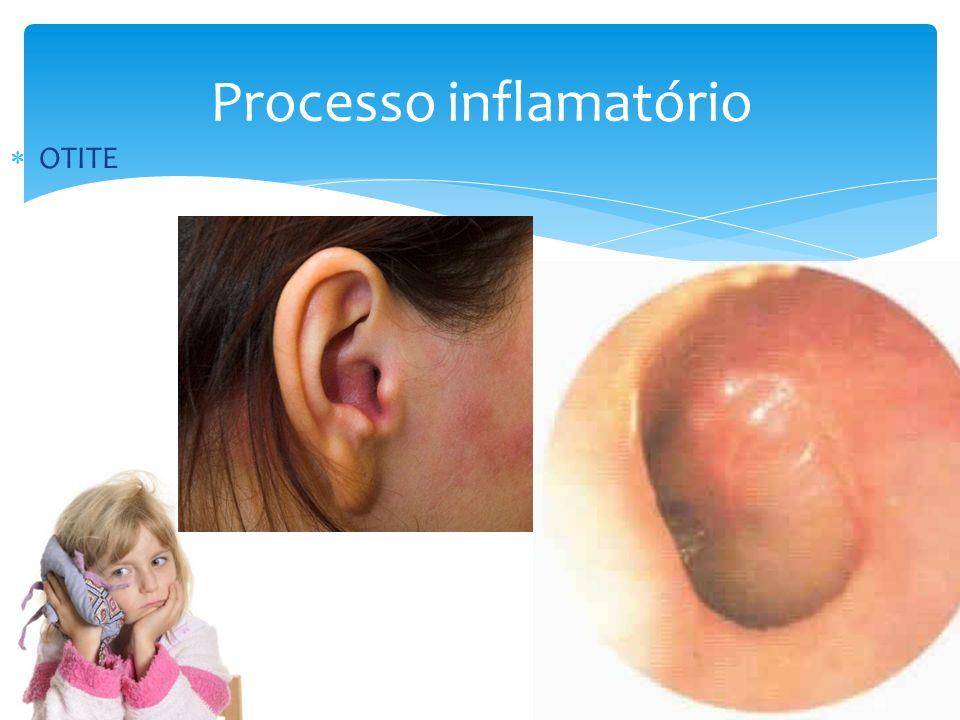 Processo inflamatório OTITE