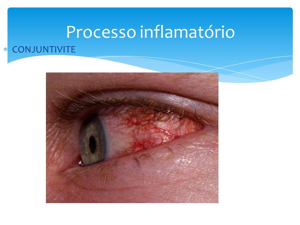 Processo inflamatório BURSITE