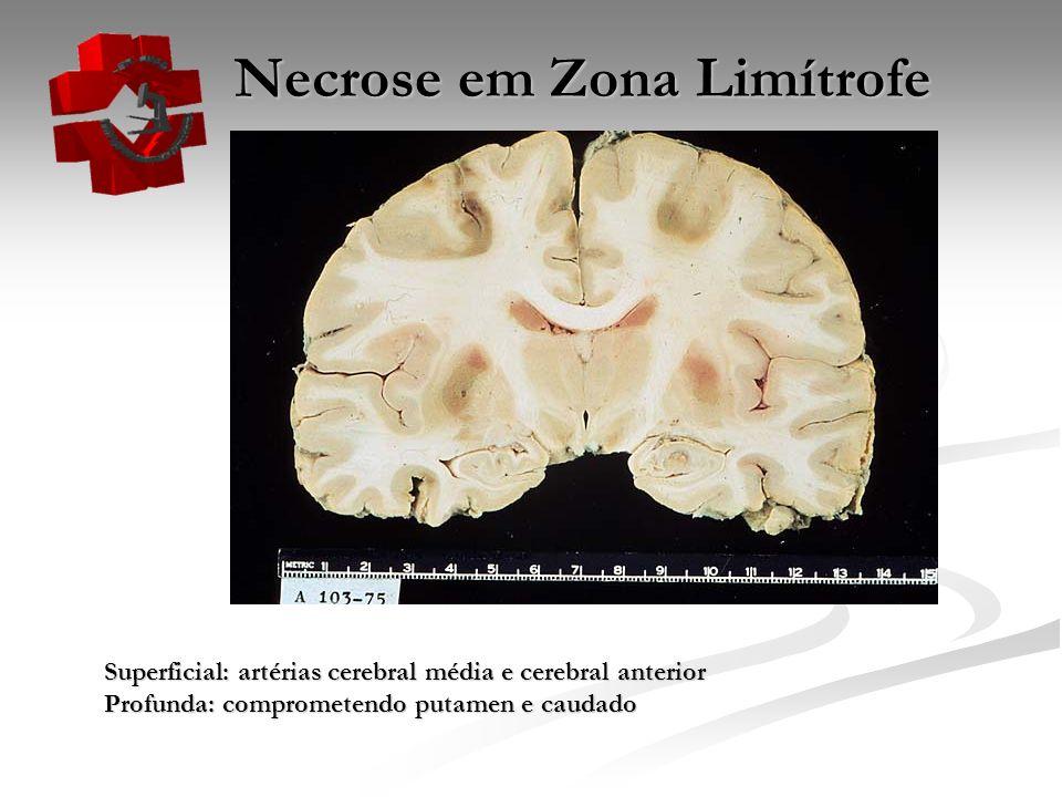 Necrose em Zona Limítrofe Necrose em Zona Limítrofe Superficial: artérias cerebral média e cerebral anterior Profunda: comprometendo putamen e caudado