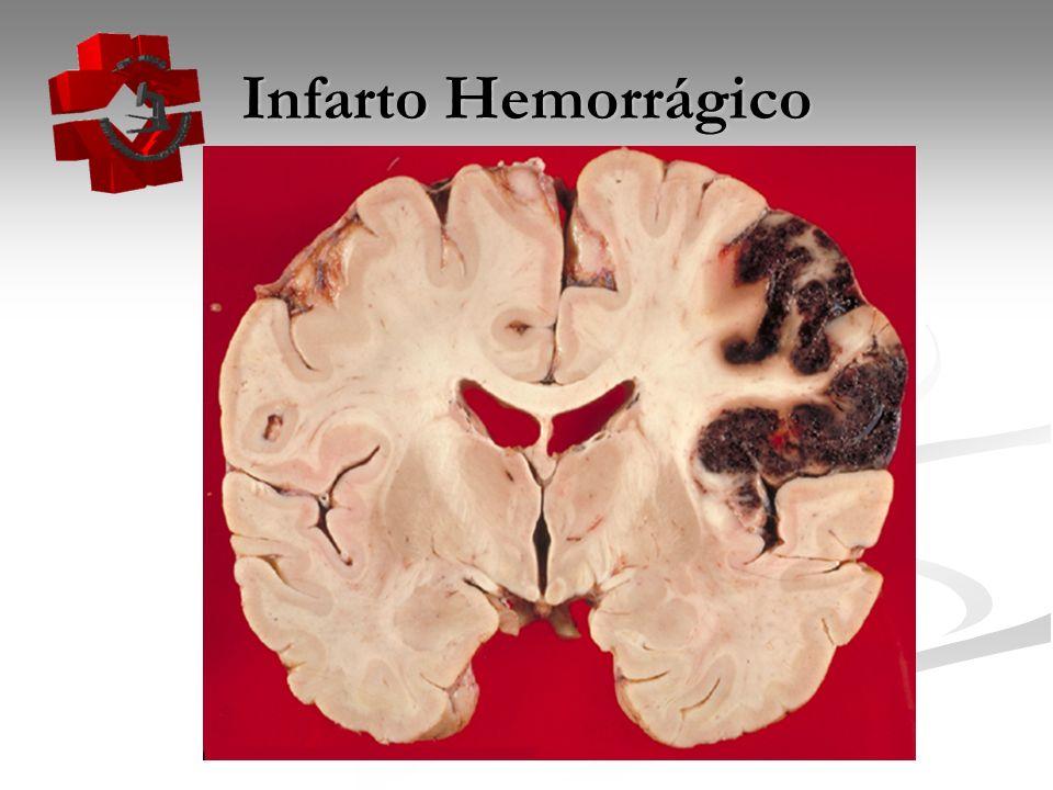 Infarto Hemorrágico