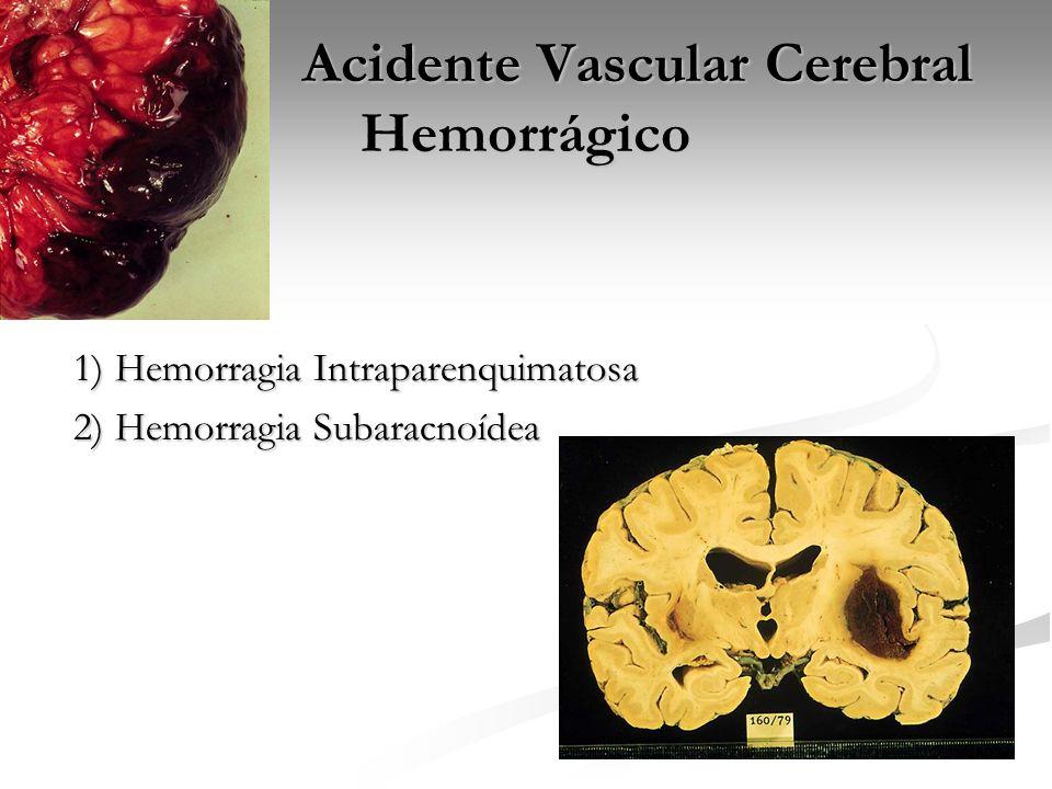 Acidente Vascular Cerebral Hemorrágico Acidente Vascular Cerebral Hemorrágico 1) Hemorragia Intraparenquimatosa 1) Hemorragia Intraparenquimatosa 2) H