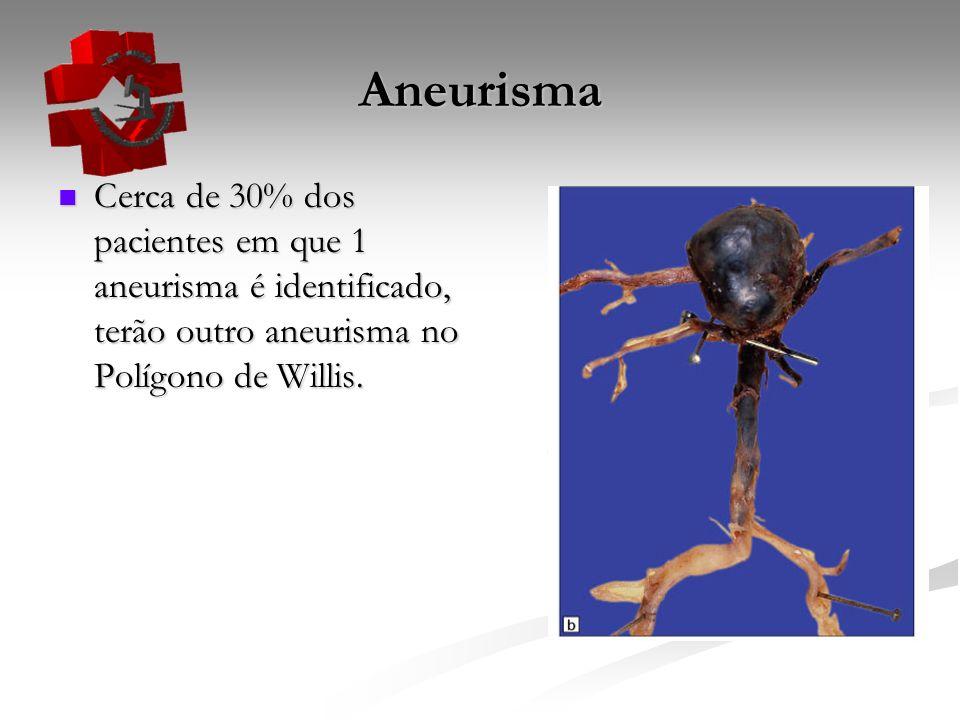 Aneurisma Cerca de 30% dos pacientes em que 1 aneurisma é identificado, terão outro aneurisma no Polígono de Willis. Cerca de 30% dos pacientes em que