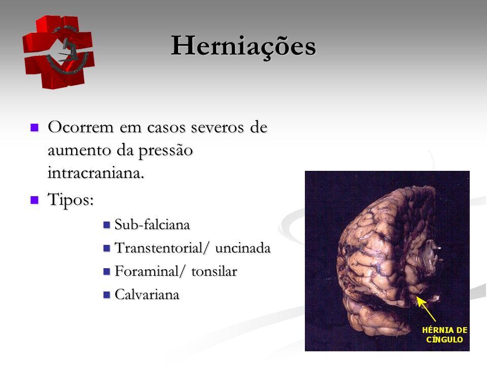 Herniações Ocorrem em casos severos de aumento da pressão intracraniana. Ocorrem em casos severos de aumento da pressão intracraniana. Tipos: Tipos: S