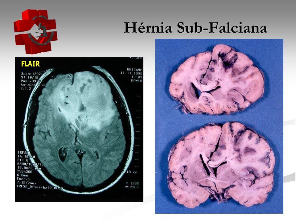 Hérnia Sub-Falciana Hérnia Sub-Falciana