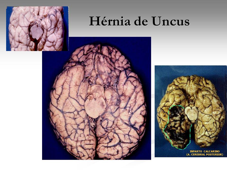Hérnia de Uncus Hérnia de Uncus