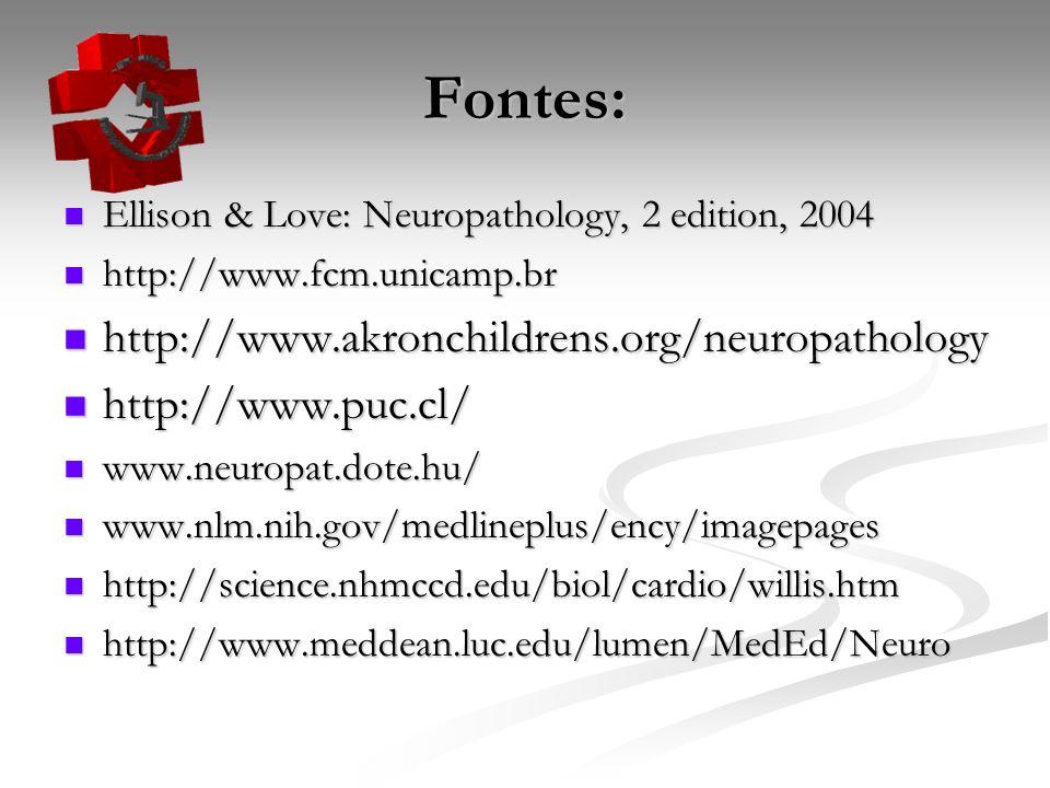 Fontes: Ellison & Love: Neuropathology, 2 edition, 2004 Ellison & Love: Neuropathology, 2 edition, 2004 http://www.fcm.unicamp.br http://www.fcm.unicamp.br http://www.akronchildrens.org/neuropathology http://www.akronchildrens.org/neuropathology http://www.puc.cl/ http://www.puc.cl/ www.neuropat.dote.hu/ www.neuropat.dote.hu/ www.nlm.nih.gov/medlineplus/ency/imagepages www.nlm.nih.gov/medlineplus/ency/imagepages http://science.nhmccd.edu/biol/cardio/willis.htm http://science.nhmccd.edu/biol/cardio/willis.htm http://www.meddean.luc.edu/lumen/MedEd/Neuro http://www.meddean.luc.edu/lumen/MedEd/Neuro