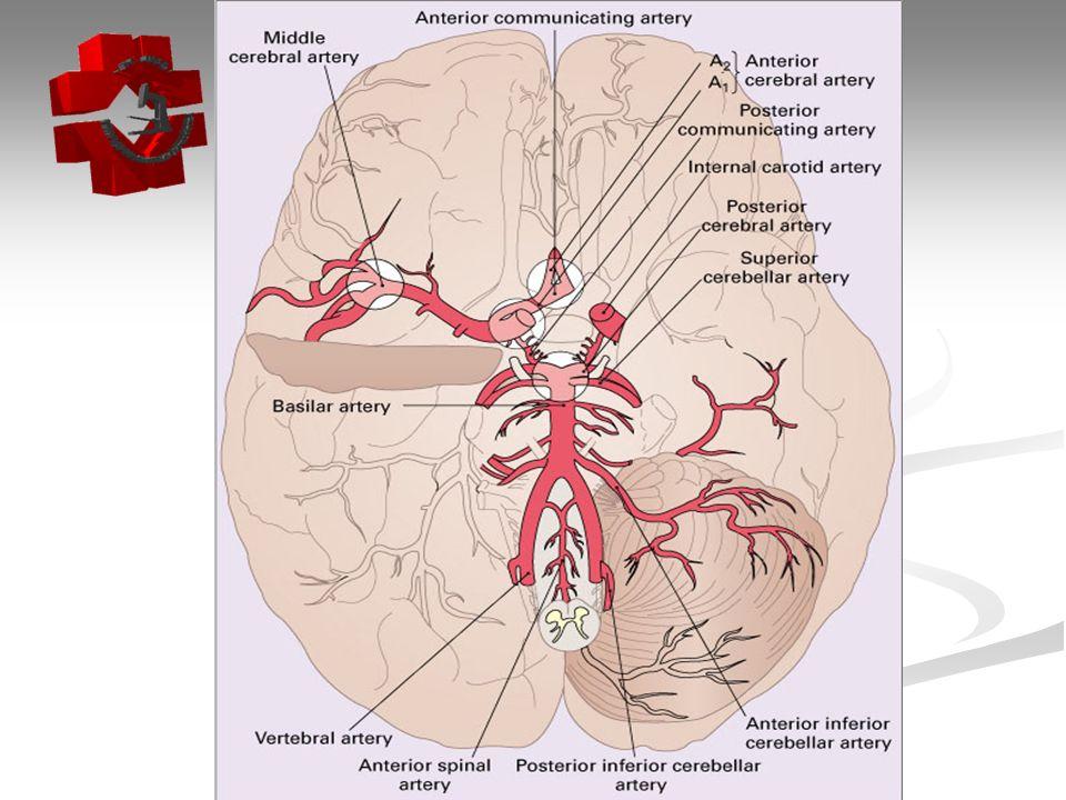 Aneurisma Cerca de 30% dos pacientes em que 1 aneurisma é identificado, terão outro aneurisma no Polígono de Willis.