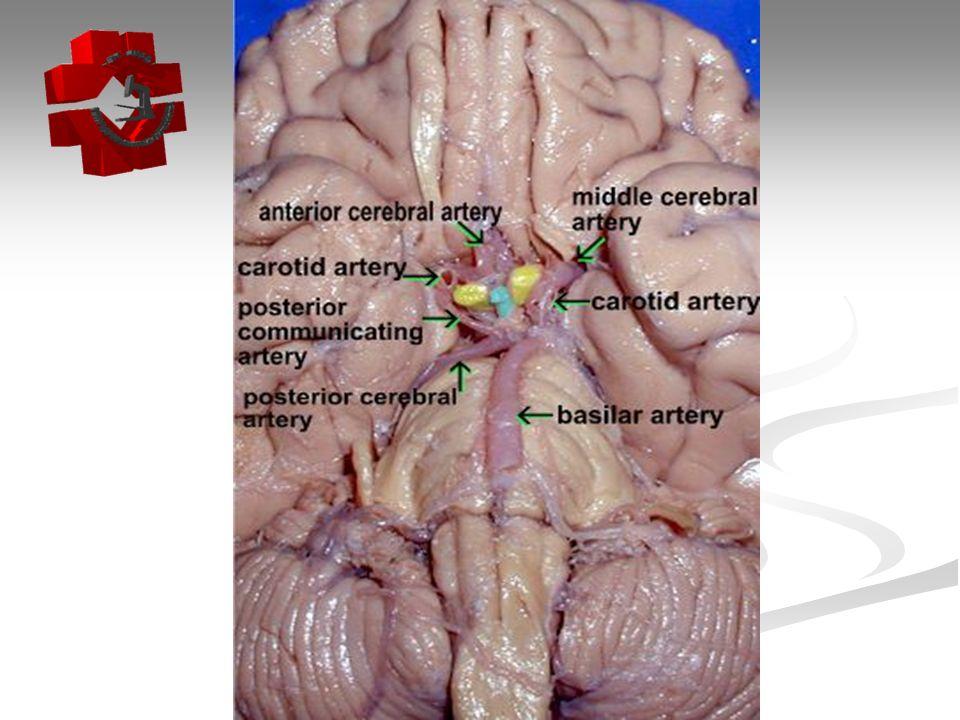 2)Infarto Cerebral- Evolução 2)Infarto Cerebral- Evolução Recentes: até a 1 o semana.
