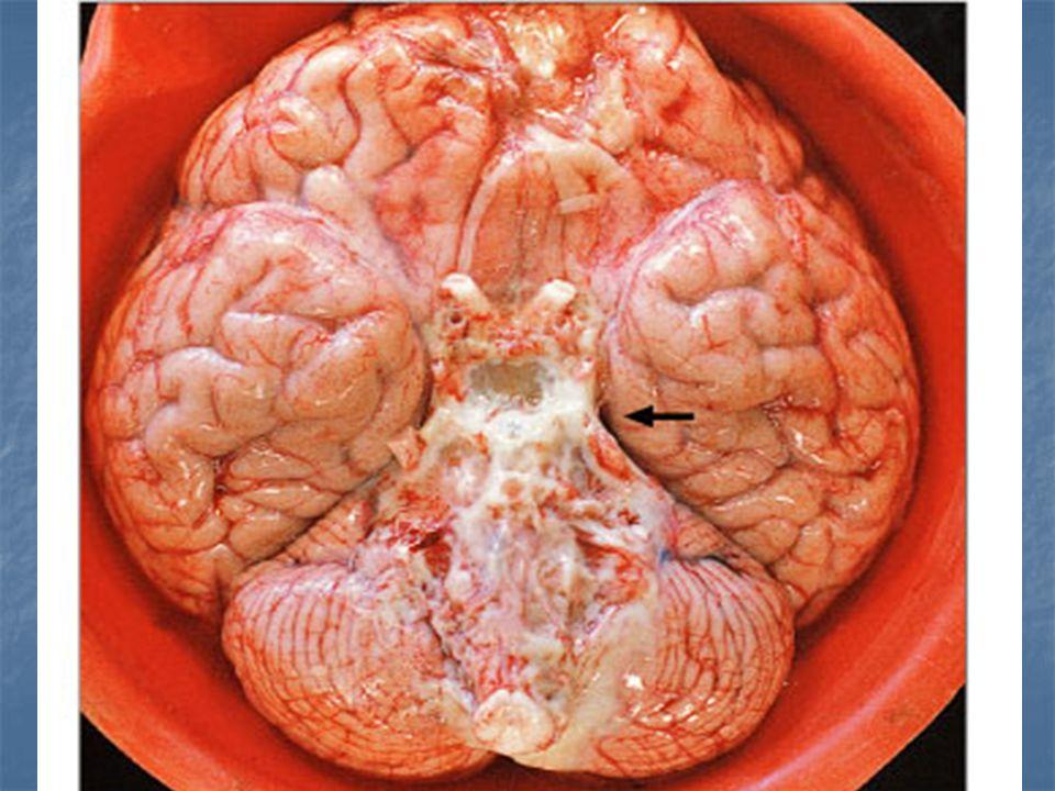 Neuropathology 2ed.