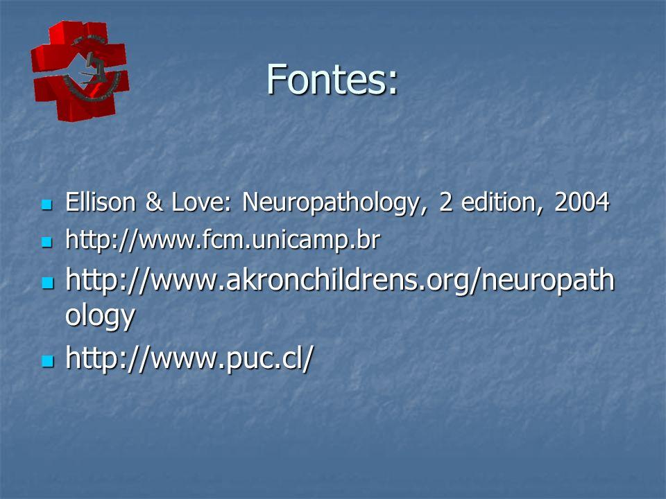 Fontes: Ellison & Love: Neuropathology, 2 edition, 2004 Ellison & Love: Neuropathology, 2 edition, 2004 http://www.fcm.unicamp.br http://www.fcm.unica