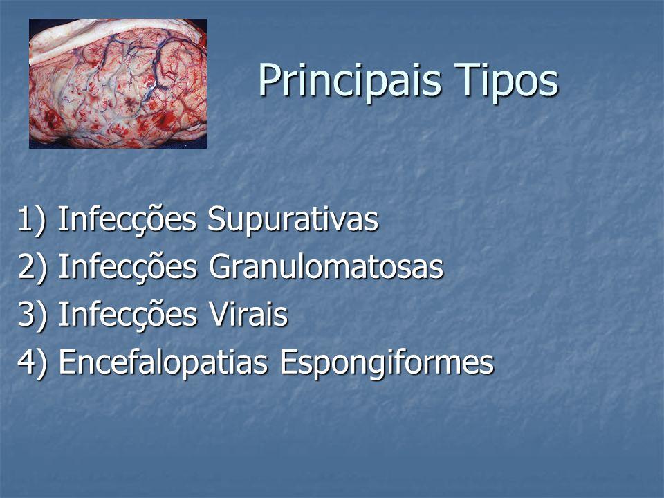 Neurosarcoidose