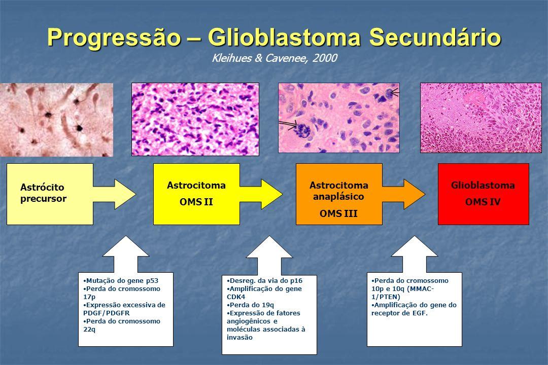 Progressão – Glioblastoma Secundário Progressão – Glioblastoma Secundário Kleihues & Cavenee, 2000 Astrócito precursor Astrocitoma OMS II Astrocitoma