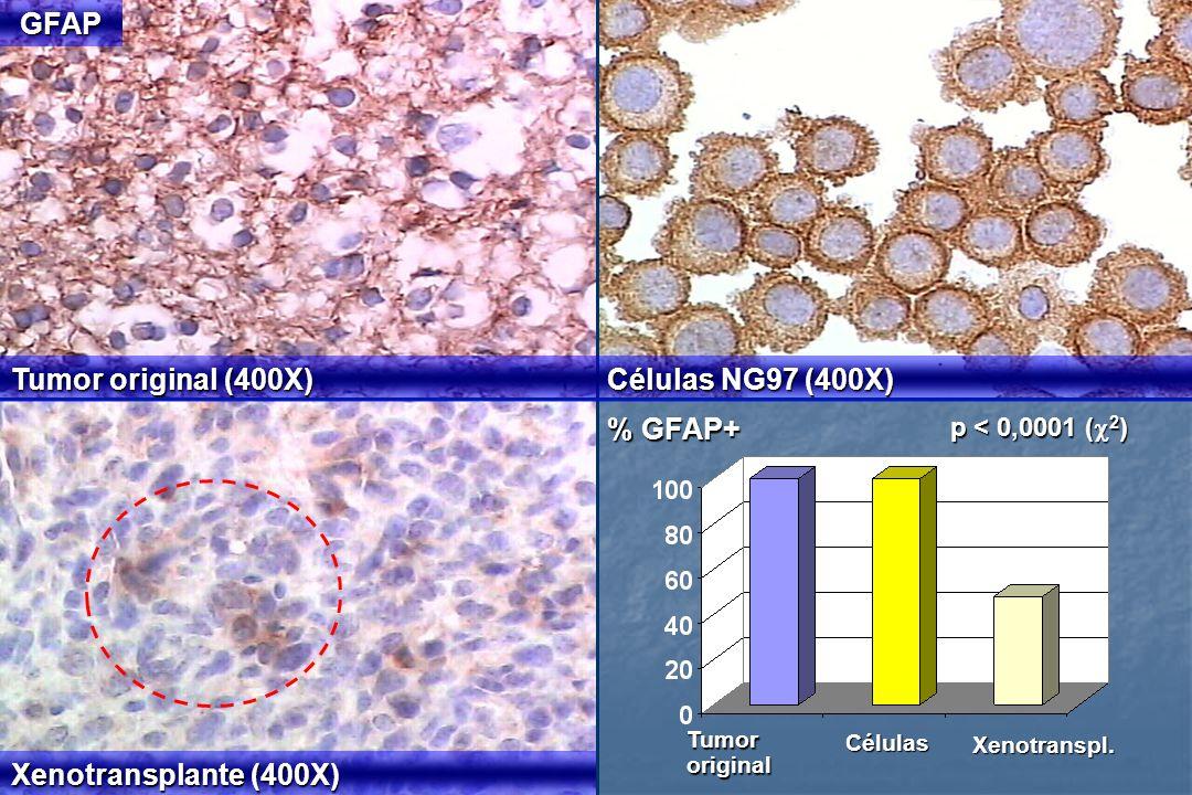 % GFAP+ Tumor original (400X) Células NG97 (400X) Xenotransplante (400X) GFAP p < 0,0001 ( 2 ) Tumororiginal Células Xenotranspl.